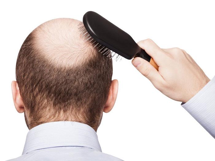 ریزش مو و درمان گیاهی آن