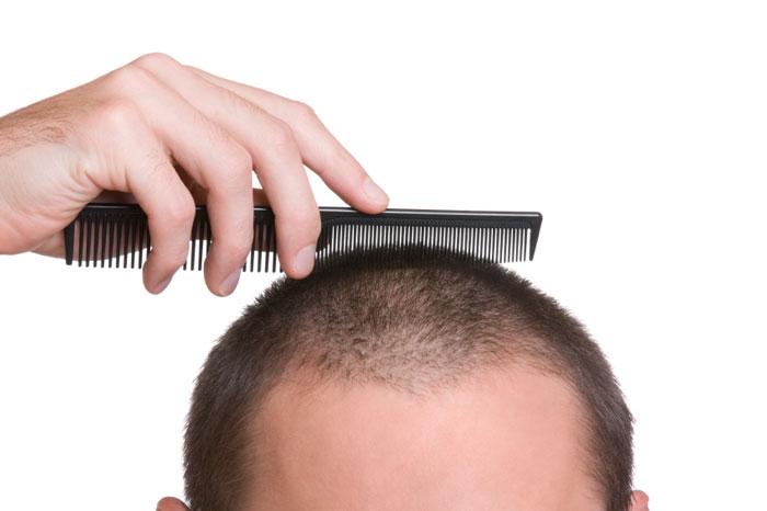 20 روش برای رشد مو