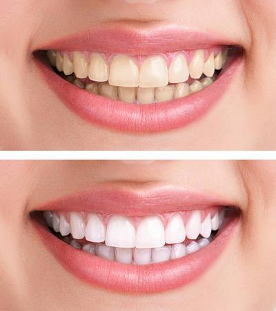 جوش شیرین دندان